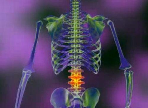 dureri de șold și hernie intervertebrală