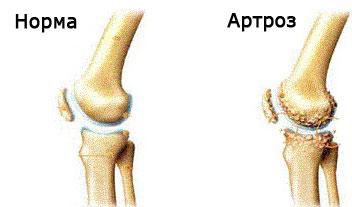 din cauza ce se dezvoltă artroza articulației genunchiului