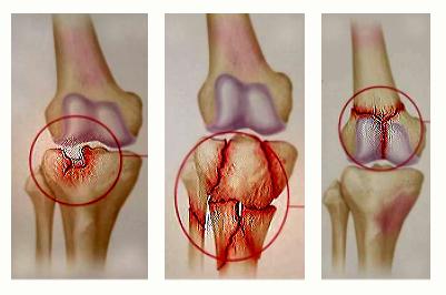 tratamentul artrozei deformante a articulației gleznei 1 grad
