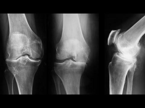 este tratată artroza genunchiului articulațiile rănite de la un computer