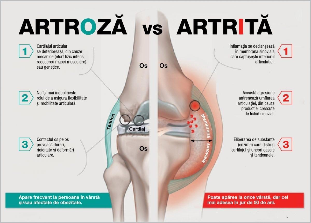 durere la nivelul feselor și șoldurilor strănut și dureri articulare