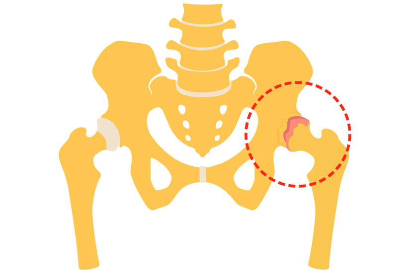 tratament articular cu cordyceps