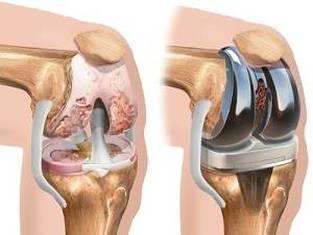 Artroza – ce este, tratament si simptome - Exacerbarea artrozei genunchiului ce trebuie făcut