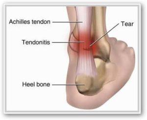 unguent condroprotectori pentru articulații după efort, articulația șoldului doare
