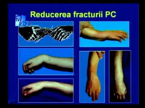 fractură la încheietura mâinii cu tratament de deplasare