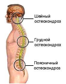 cum să tratezi articulația gleznei pe picioare san găină tratamentul artrozei