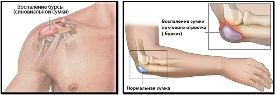 Ce să ia pentru durere în articulațiile umărului