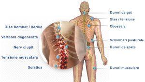 Injecții pentru dureri articulare intramuscular