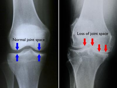 radiografie pentru dureri de genunchi se zvâcnește în articulația umărului și doare