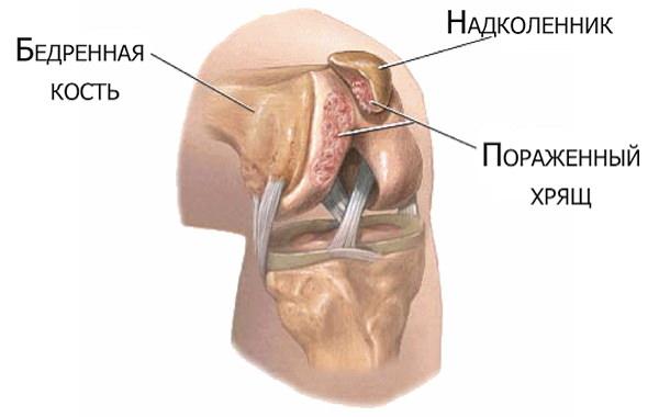 Refacerea circulației sângelui în articulația genunchiului Cocktail de tratament comun