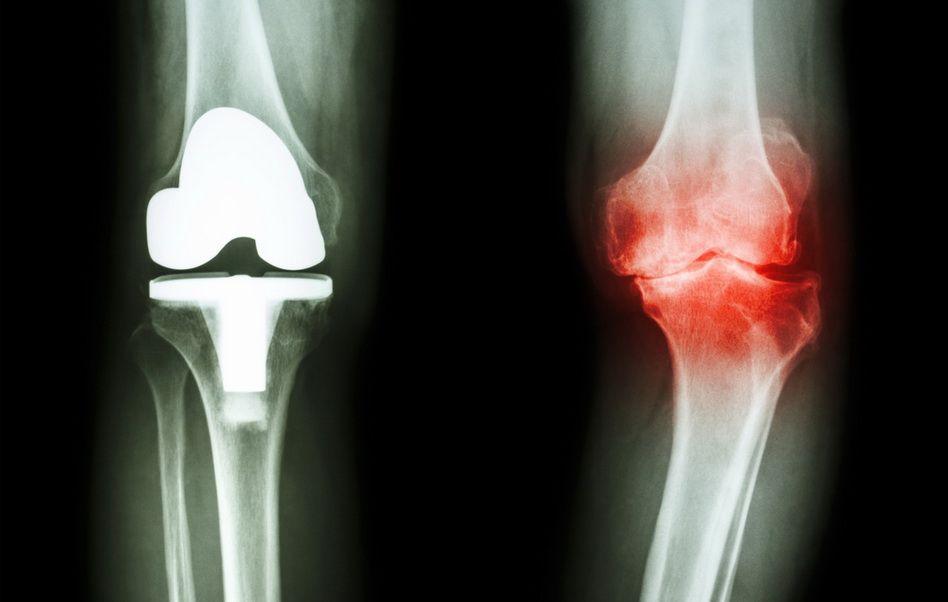 remedii eficiente pentru artroza articulației genunchiului de ce articulația genunchiului doare noaptea