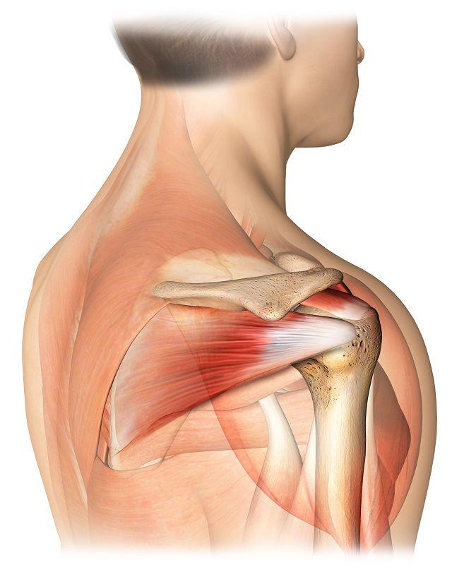 Artroscopia umărului. Repararea rupturii de coafa rotatorilor. Dr. Popescu