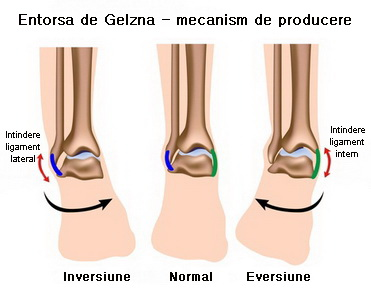 ruperea ligamentelor gleznei tratament unguent ce medicamente sunt prescrise pentru artroza articulației genunchiului