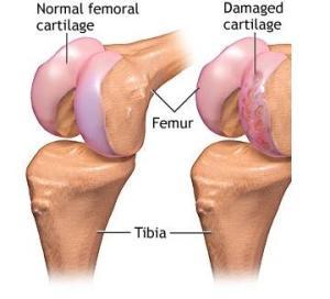 subțierea cartilajului hialin al tratamentului articulației genunchiului dacă durere în toate articulațiile