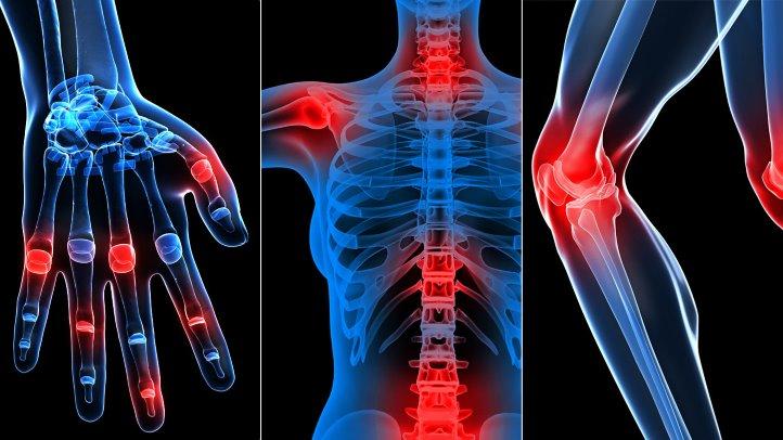 medicatie pentru artroza articulațiile doare la pierderea în greutate