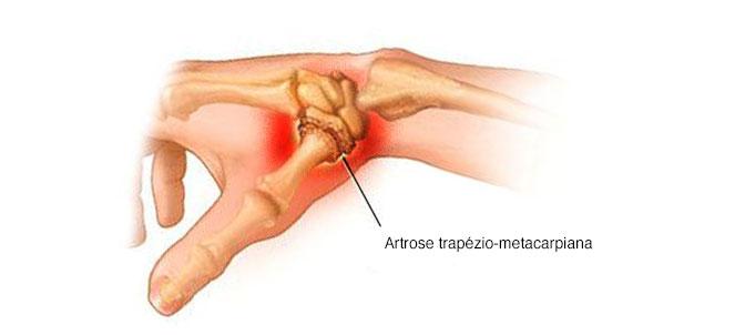 ligamentul medial al articulației genunchiului cum să-l trateze pastile pentru dureri articulare la