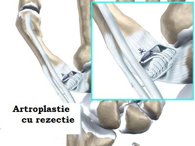 unguent pentru indovasina articulațiilor genunchiului unguente pentru durere în articulația cotului