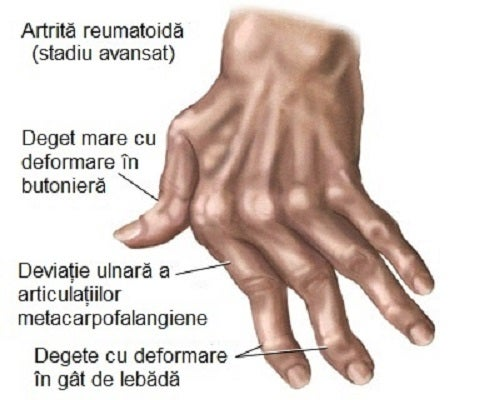 tratamentul eficient al articulațiilor degetelor