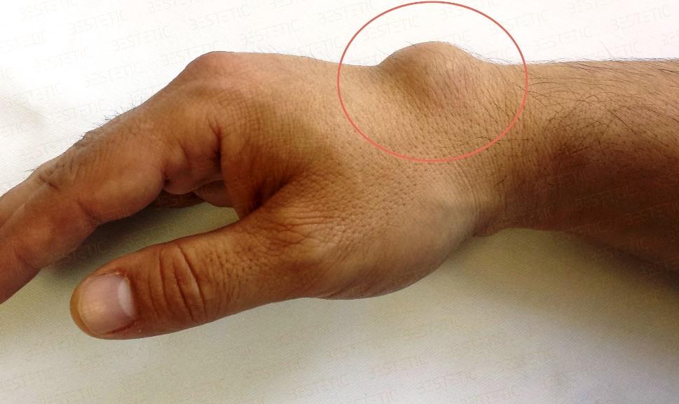 tratamentul gangliomului la încheietura mâinii