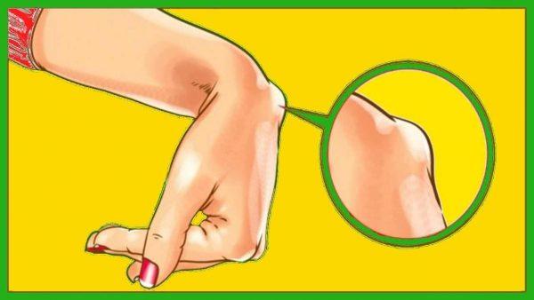 tratamentul ganglionului tendonului la încheietura mâinii don medicamente pentru tratamentul artrozei