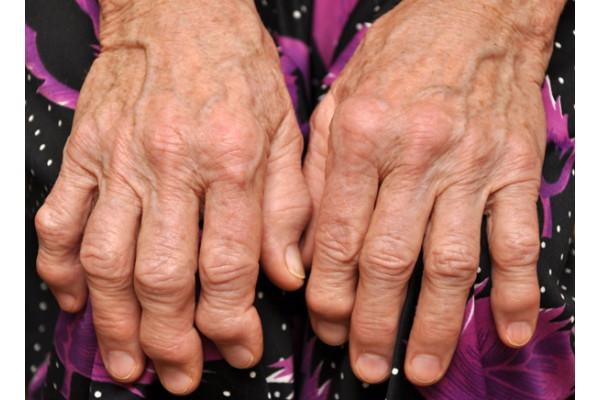 tratarea artrozei mâinilor