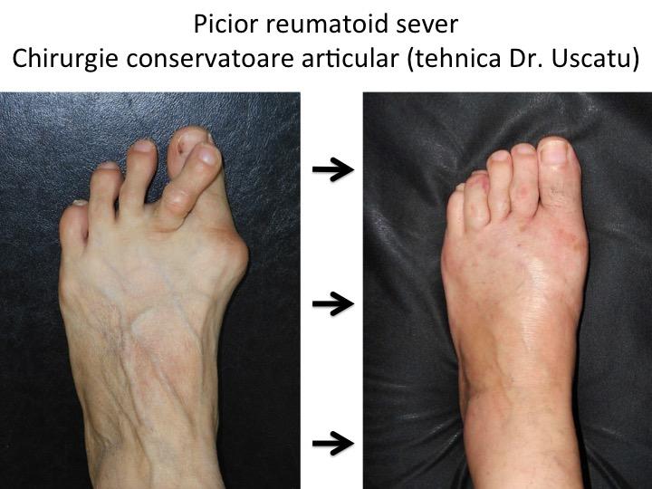 umflarea articulațiilor piciorului
