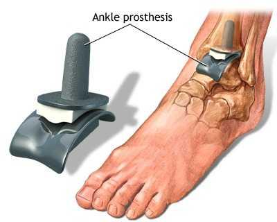 articulațiile gleznei piciorului doare ce unguente se folosesc pentru osteochondroză