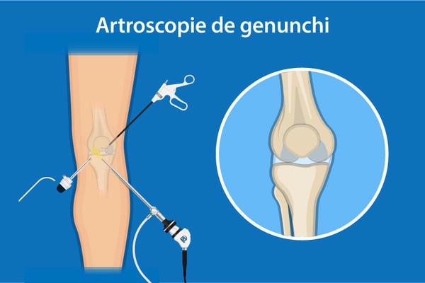 dureri de genunchi și intervenții chirurgicale cum să tratezi artrita spinală
