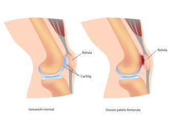 dureri de genunchi și intervenții chirurgicale care tratează artroza piciorului
