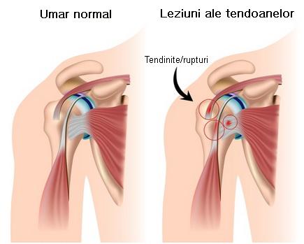 blocaj pe articulația umărului pentru durere