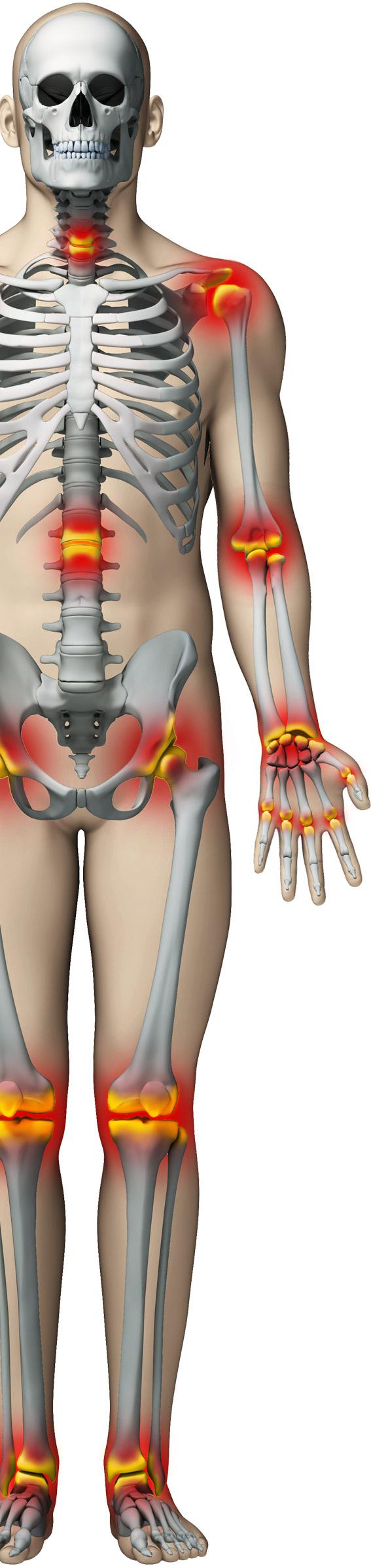 dureri articulare tratament eficient dureri și cauză la nivelul gleznelor