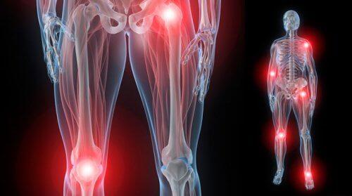 dureri articulare rapide ale pulsului posibilă cauză de durere în articulații și mușchi