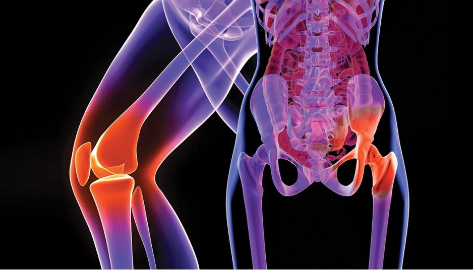 dureri de șold tratament la domiciliu boală articulară și infecție