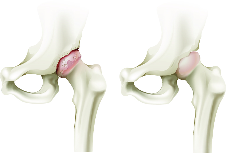 de ce doare meniscul genunchiului pentru articulații glucozamină sau glucozamină cu condroitină