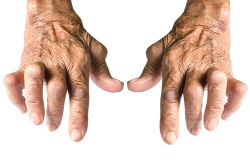 stațiuni pentru tratamentul artrozei în rusia
